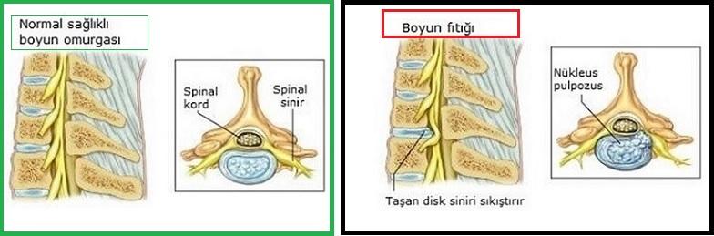 Resimde solda sağlıklı boyun omurgası ve sağda ''BOYUN FITIĞI'' görülüyor.