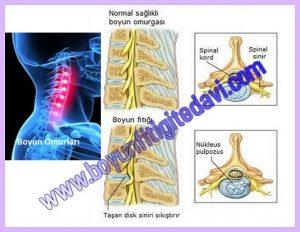 Resimde en solda boyun omurları,ortada üstte sağlıklı normal boyun omurgası ve ortada altta taşan diskin siniri sıkıştırması ''Boyun Fıtığı'' görülüyor.