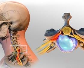 Boyun Fıtığı Cerrahisi,Boyun Fıtığı ameliyatı