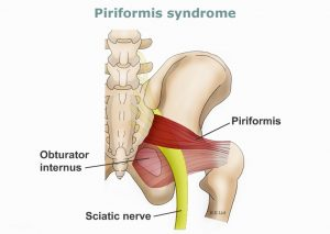 Piriformis Sendromu